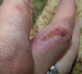 Shirley finger